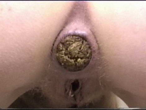 anal sex causing her to poop
